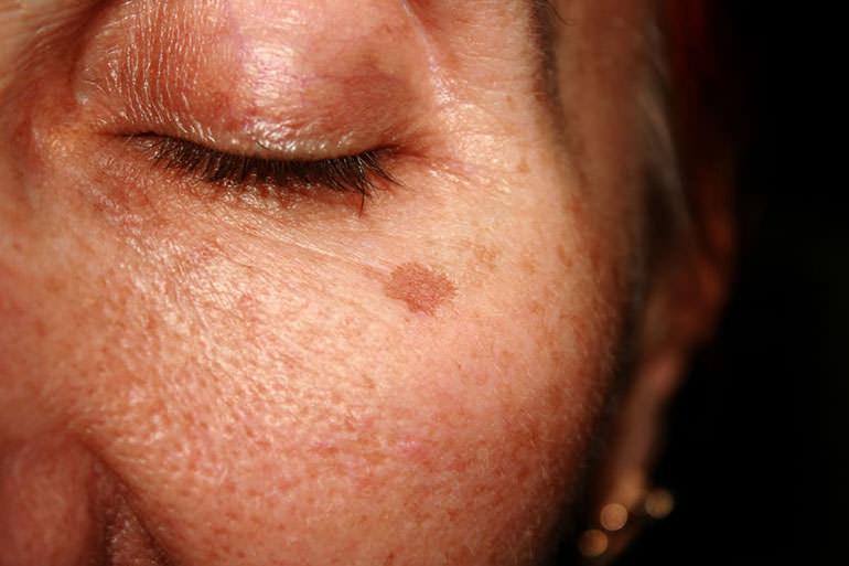 عوارض لوازم آرایشی و بهداشتی-تغییر رنگ پوست
