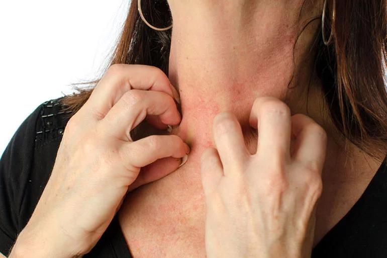 عوارض لوازم آرایشی و بهداشتی-حساسیت-پوستی