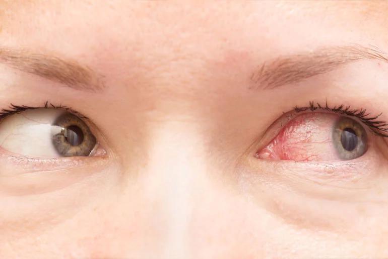 عوارض لوازم آرایشی و بهداشتی-عفونت چشم