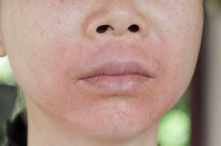 پوست های حساس و عوارض پدید آمده