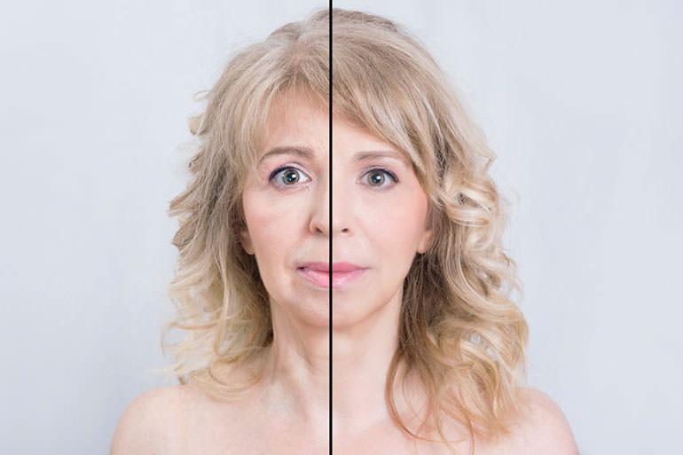 عوارض لوازم آرایشی و بهداشتی-پیری زودرس